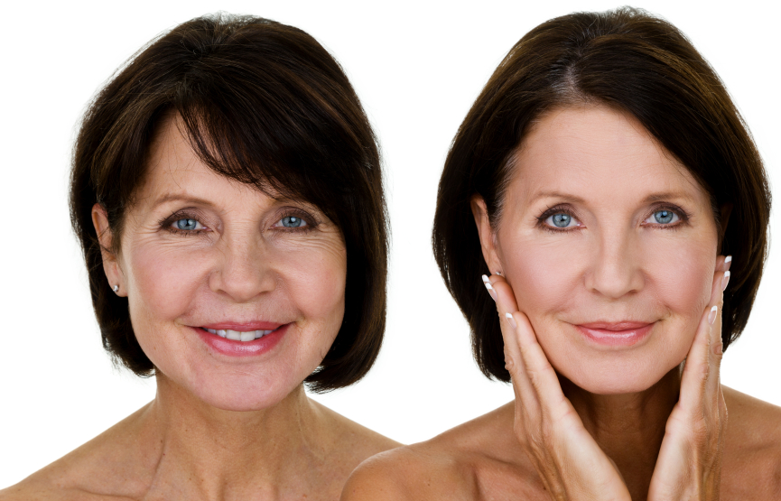 Mature woman left pre makeover, right post makeover